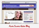 Acne Scars Niche Blog Personal Use Template