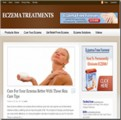 Eczema Treatments Blog Personal Use Template With Video
